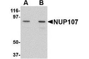 Image no. 1 for anti-Nucleoporin 107kDa (NUP107) (C-Term) antibody (ABIN1030552)