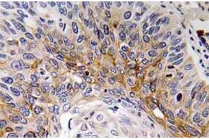 Immunohistochemistry (Paraffin-embedded Sections) (IHC (p)) image for anti-Cardiotrophin 1 antibody (CTF1) (ABIN498664)