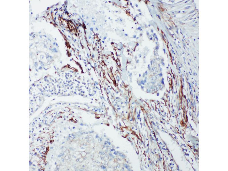 Immunohistochemistry (IHC) image for anti-SHC1 antibody (SHC (Src Homology 2 Domain Containing) Transforming Protein 1) (AA 424-440) (ABIN3044111)