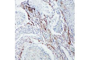 Immunohistochemistry (IHC) image for anti-SHC (Src Homology 2 Domain Containing) Transforming Protein 1 (SHC1) (AA 424-440), (C-Term) antibody (ABIN3044111)