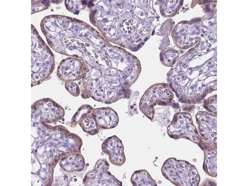 Immunohistochemistry (Paraffin-embedded Sections) (IHC (p)) image for anti-Serotonin Receptor 2B (HTR2B) antibody (ABIN4276881)