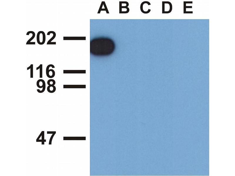 Western Blotting (WB) image for anti-EGFR antibody (Epidermal Growth Factor Receptor) (Tyr1173) (ABIN343717)
