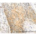 Immunohistochemistry of Human esophagus cancer using CAPN1 Polyclonal Antibody at dilution of 1:20