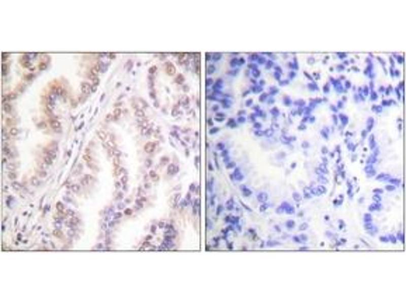 Immunohistochemistry (IHC) image for anti-Protein Inhibitor of Activated STAT, 1 (PIAS1) (AA 10-59) antibody (ABIN1533432)