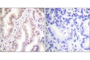 Immunohistochemistry (IHC) image for anti-Protein Inhibitor of Activated STAT, 1 (PIAS1) (AA 10-59) antibody (ABIN1533432)