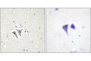 Image no. 2 for anti-Activin Receptor Type IC (ACVR1C) (AA 201-250) antibody (ABIN2889678)