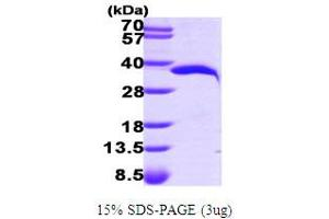 Image no. 1 for Nicotinamide Nucleotide Adenylyltransferase 1 (NMNAT1) (AA 1-279) protein (His tag) (ABIN667161)