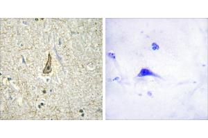 Image no. 1 for anti-Cytochrome P450, Family 26, Subfamily C, Polypeptide 1 (CYP26C1) antibody (ABIN1575981)
