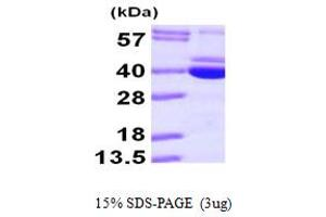 Image no. 1 for Pyridoxal Kinase (PDXK) (AA 1-312) protein (His tag) (ABIN667835)