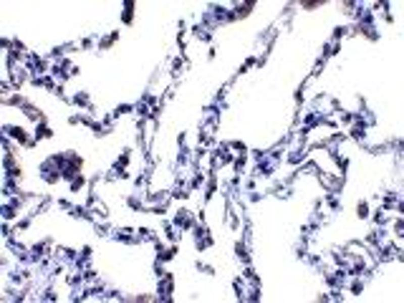 Immunohistochemistry (IHC) image for anti-Ribonucleotide Reductase M2 B (TP53 Inducible) (RRM2B) (N-Term) antibody (ABIN1031501)