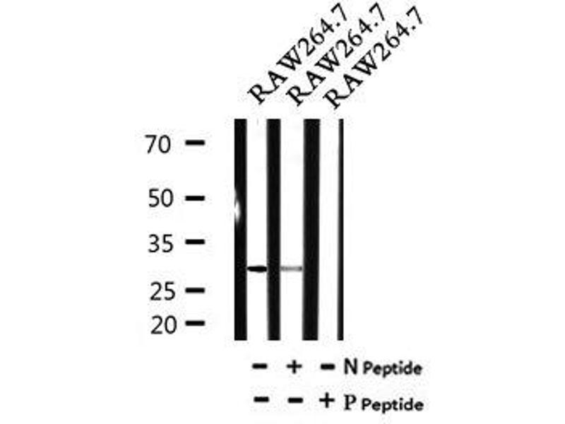 Image no. 2 for anti-Cyclin-Dependent Kinase 20 (CDK20) (pThr161) antibody (ABIN6269483)