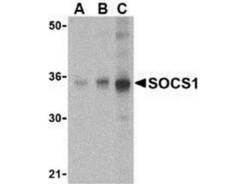 Western Blotting (WB) image for anti-Suppressor of Cytokine Signaling 1 (SOCS1) (C-Term) antibody (ABIN451850)