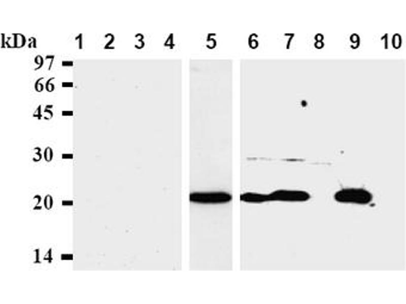 Western Blotting (WB) image for anti-BAX antibody (BCL2-Associated X Protein) (AA 3-16) (ABIN492362)