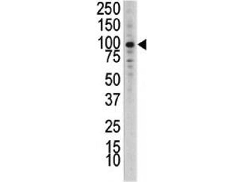Western Blotting (WB) image for anti-DDR1 antibody (Discoidin Domain Receptor tyrosine Kinase 1) (AA 17-47) (ABIN3030735)