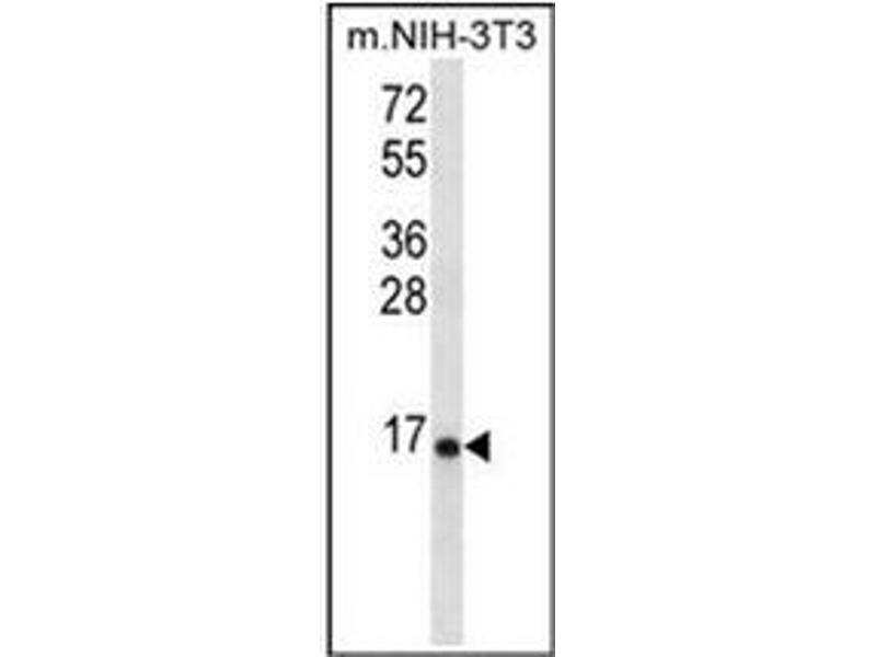 Western Blotting (WB) image for anti-Ribosomal Protein L23 (RPL23) (AA 48-78), (Middle Region) antibody (ABIN954590)