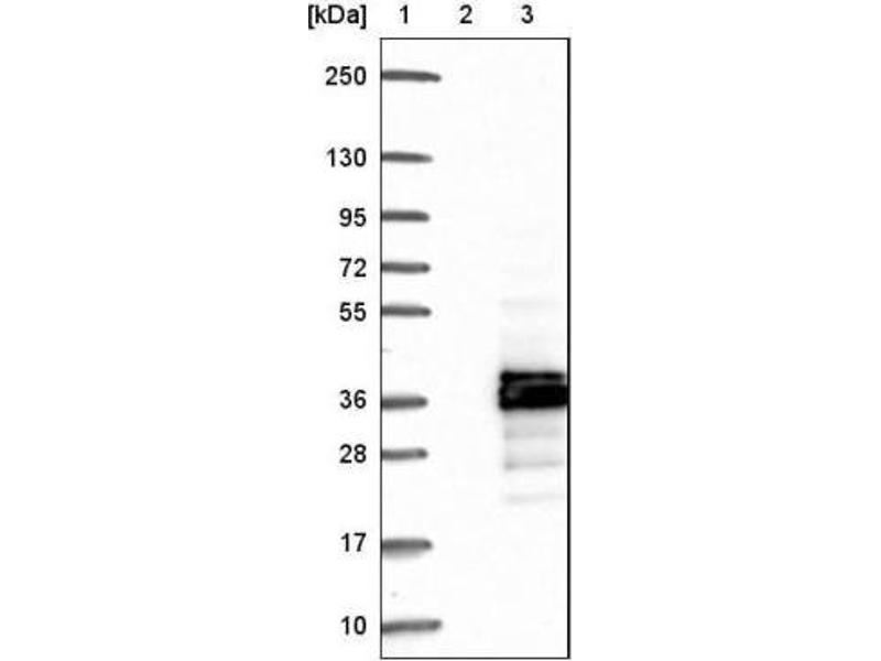 Western Blotting (WB) image for anti-CDC42 Effector Protein (Rho GTPase Binding) 2 (CDC42EP2) antibody (ABIN4296956)