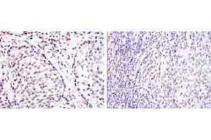 Immunohistochemistry (IHC) image for anti-cAMP Responsive Element Binding Protein 1 (CREB1) antibody (ABIN1106831)