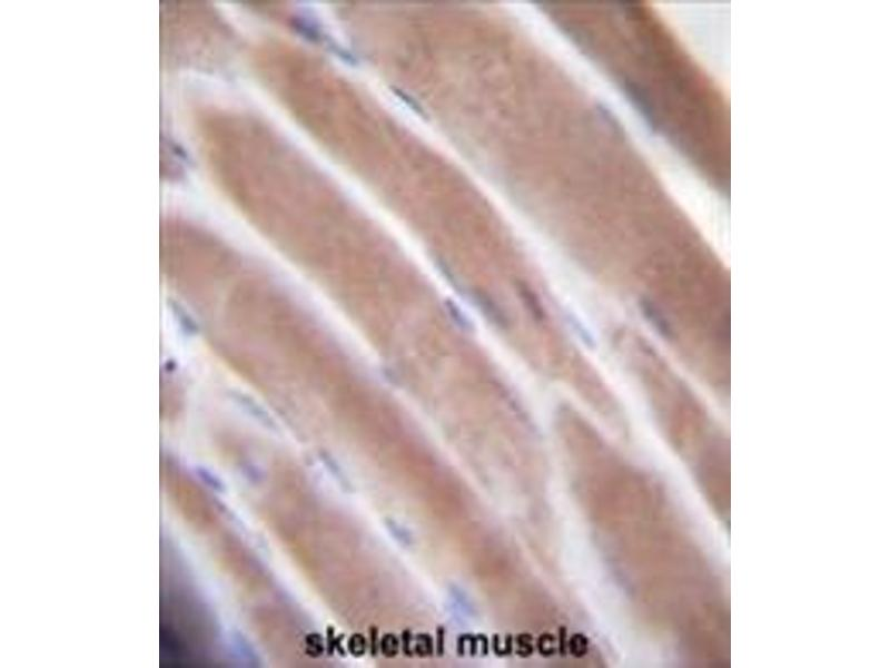 Immunohistochemistry (Paraffin-embedded Sections) (IHC (p)) image for anti-VEGFC antibody (Vascular Endothelial Growth Factor C) (AA 27-57) (ABIN955510)