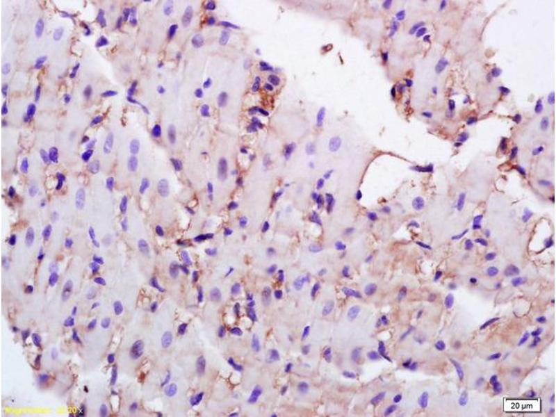 Immunohistochemistry (IHC) image for anti-CD36 Molecule (thrombospondin Receptor) (CD36) (AA 50-100) antibody (ABIN737661)