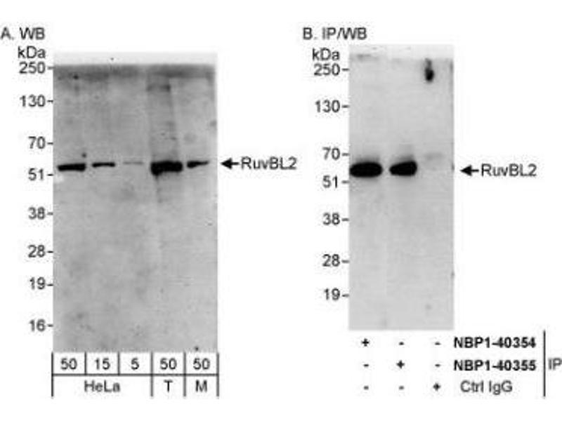 Western Blotting (WB) image for anti-RuvB-Like 2 (E. Coli) (RUVBL2) (AA 1-50) antibody (ABIN445020)