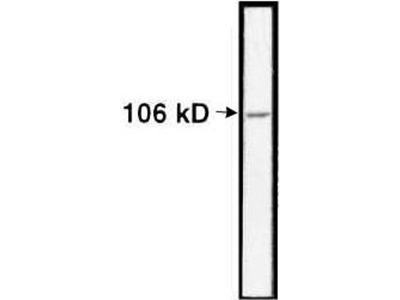 Image no. 1 for anti-Nucleolin (NCL) antibody (ABIN153181)