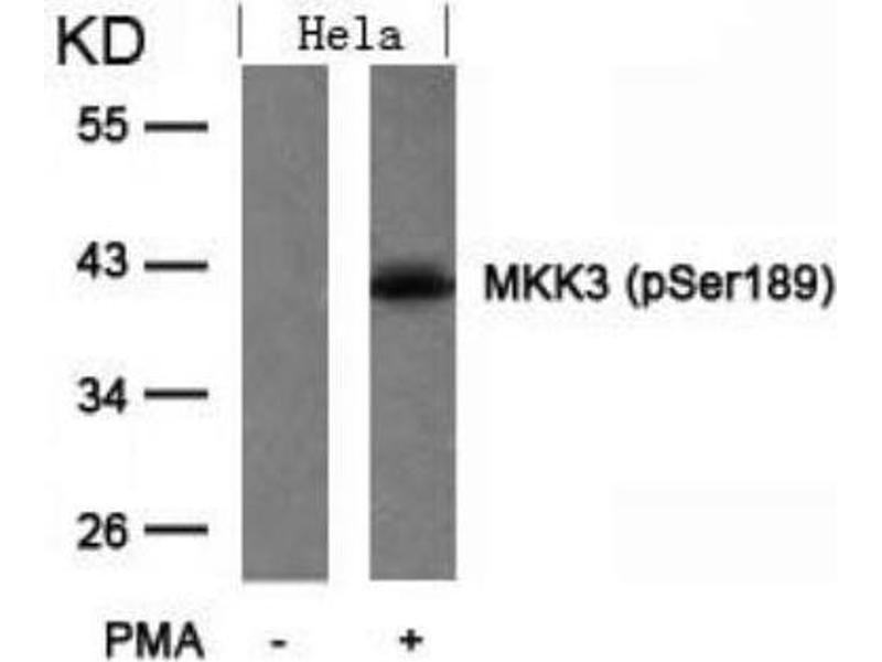 Western Blotting (WB) image for anti-MAP2K3 antibody (Mitogen-Activated Protein Kinase Kinase 3) (pSer189) (ABIN257414)