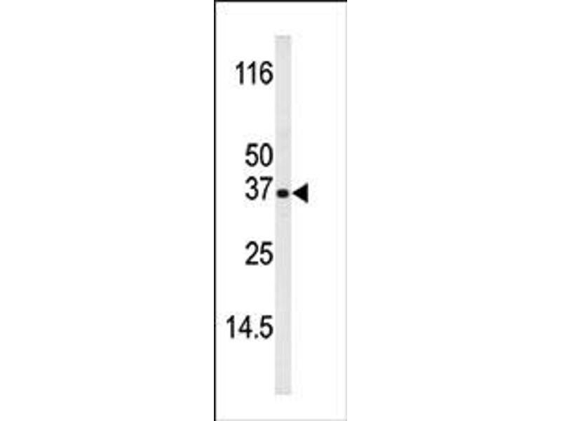 image for anti-BCL2-Interacting Killer (Apoptosis-Inducing) (BIK) (pThr33) antibody (ABIN358090)