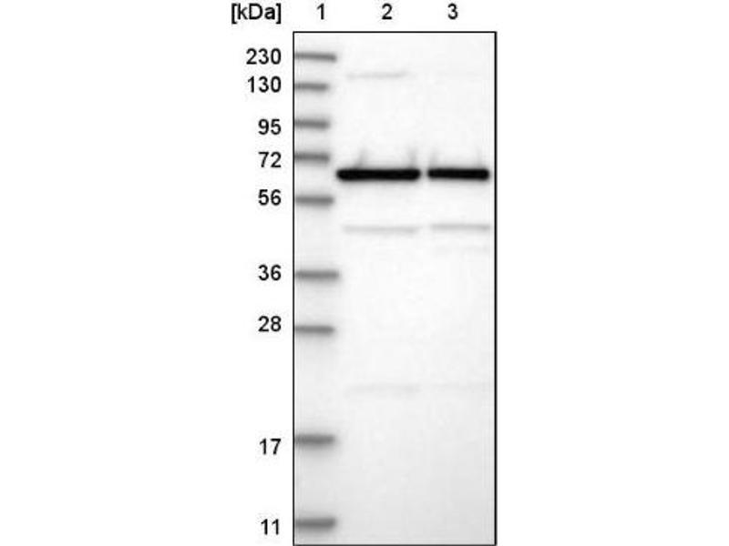 Western Blotting (WB) image for anti-CDK5 Regulatory Subunit Associated Protein 3 (CDK5RAP3) antibody (ABIN4297064)