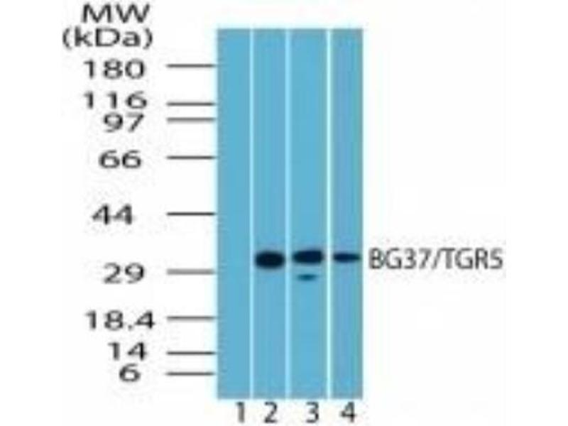 Western Blotting (WB) image for anti-GPBAR1 antibody (G Protein-Coupled Bile Acid Receptor 1) (ABIN4247420)