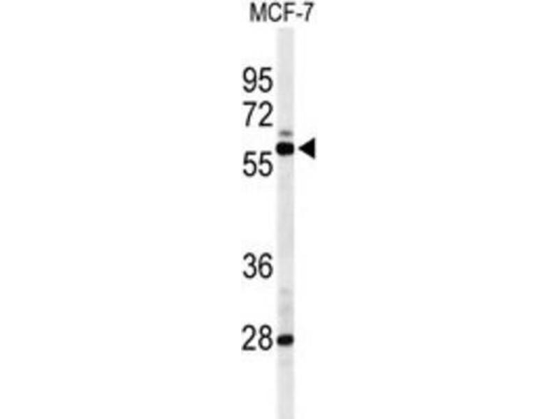 Western Blotting (WB) image for anti-Nuclear Receptor Subfamily 1, Group H, Member 3 (NR1H3) antibody (ABIN3004390)