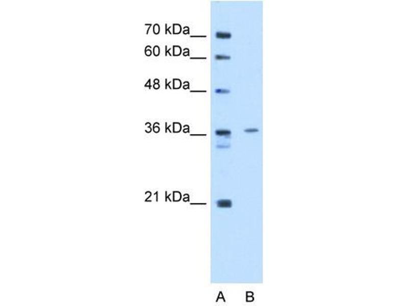 Western Blotting (WB) image for anti-Tropomyosin-2 (TPM2) (C-Term) antibody (ABIN2783288)