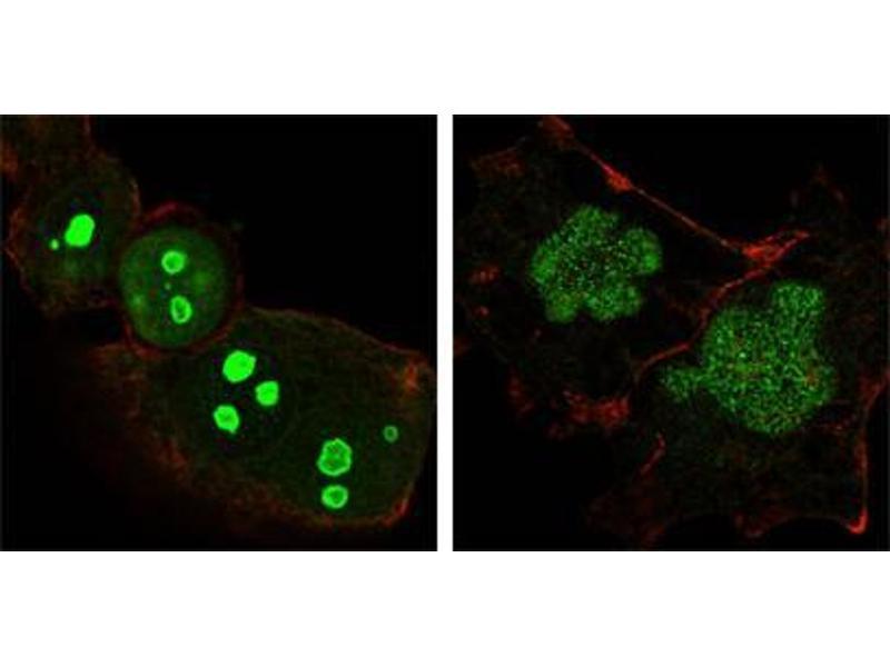 Immunocytochemistry (ICC) image for anti-Nucleophosmin (Nucleolar phosphoprotein B23, Numatrin) (NPM1) antibody (ABIN969325)