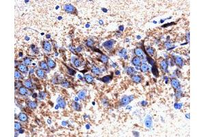 Immunohistochemistry (Paraffin-embedded Sections) (IHC (p)) image for anti-Syntaxin 6 (STX6) (AA 6-136) antibody (ABIN968080)