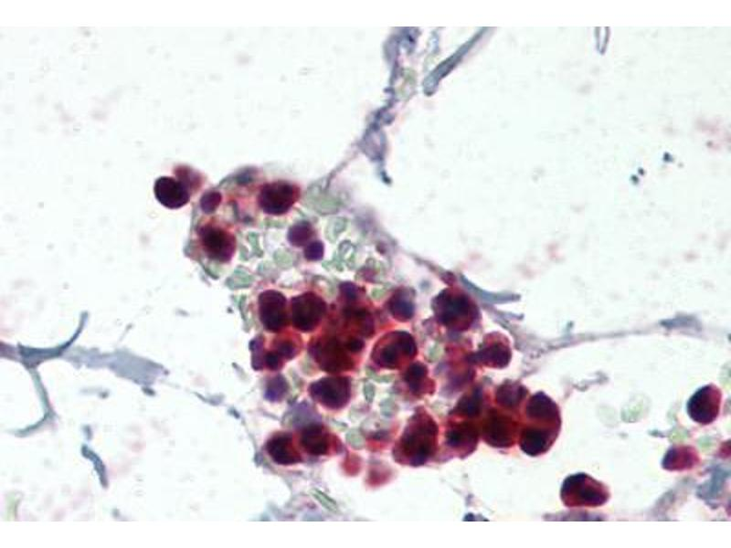 Immunohistochemistry (Paraffin-embedded Sections) (IHC (p)) image for anti-Neutrophil Cytosol Factor 1 (NCF1) (AA 378-390) antibody (ABIN337093)