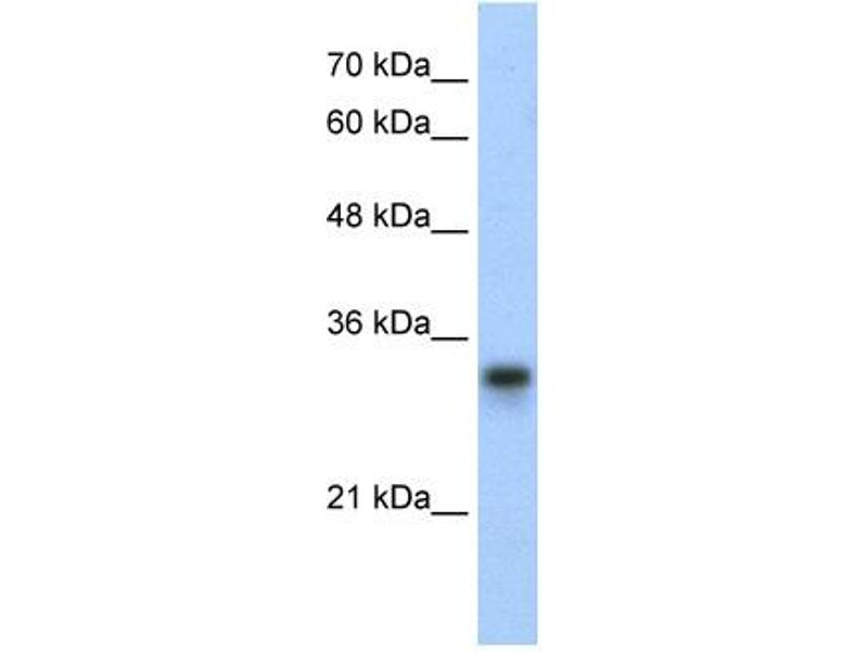 Western Blotting (WB) image for anti-Ribosomal Protein L8 (RPL8) (C-Term) antibody (ABIN310000)