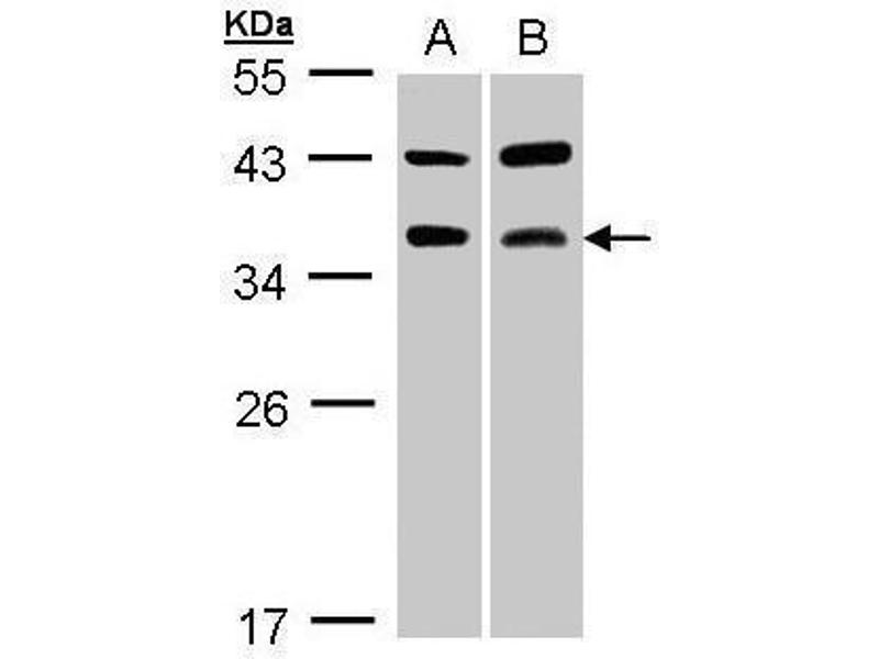 Western Blotting (WB) image for anti-CD40 Ligand antibody (CD40LG) (Center) (ABIN2854749)
