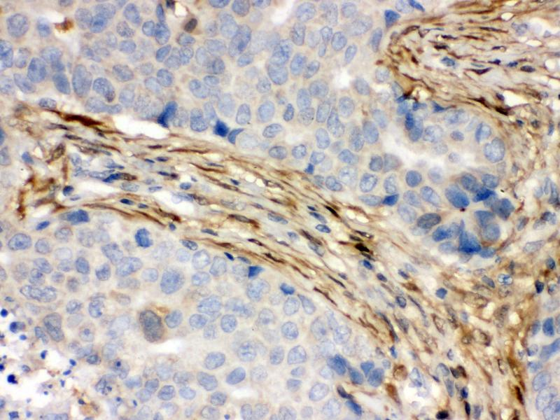 Immunohistochemistry (IHC) image for anti-S100 Calcium Binding Protein A6 (S100A6) (AA 1-90) antibody (ABIN3043320)