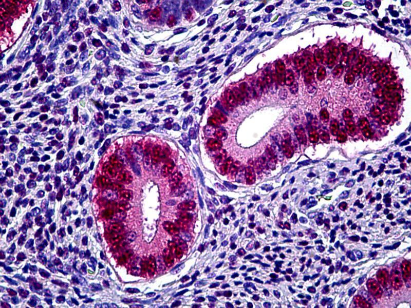 Immunohistochemistry (IHC) image for anti-Progesterone Receptor (PGR) antibody (ABIN625879)