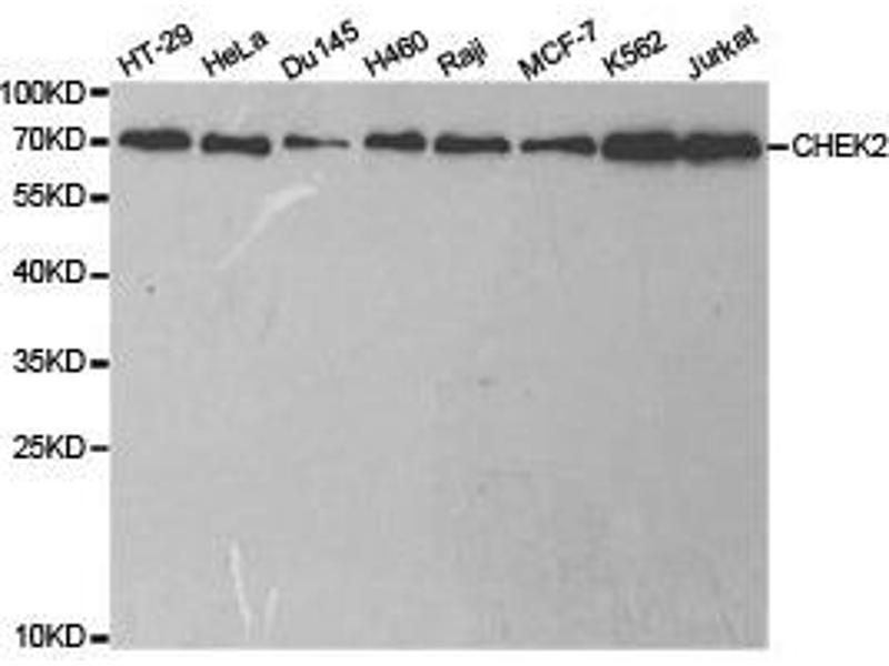 Western Blotting (WB) image for anti-Checkpoint Kinase 2 (CHEK2) antibody (ABIN1871829)