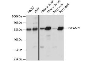 Image no. 1 for anti-Zinc Finger and SCAN Domain Containing 21 (Zscan21) antibody (ABIN6568650)