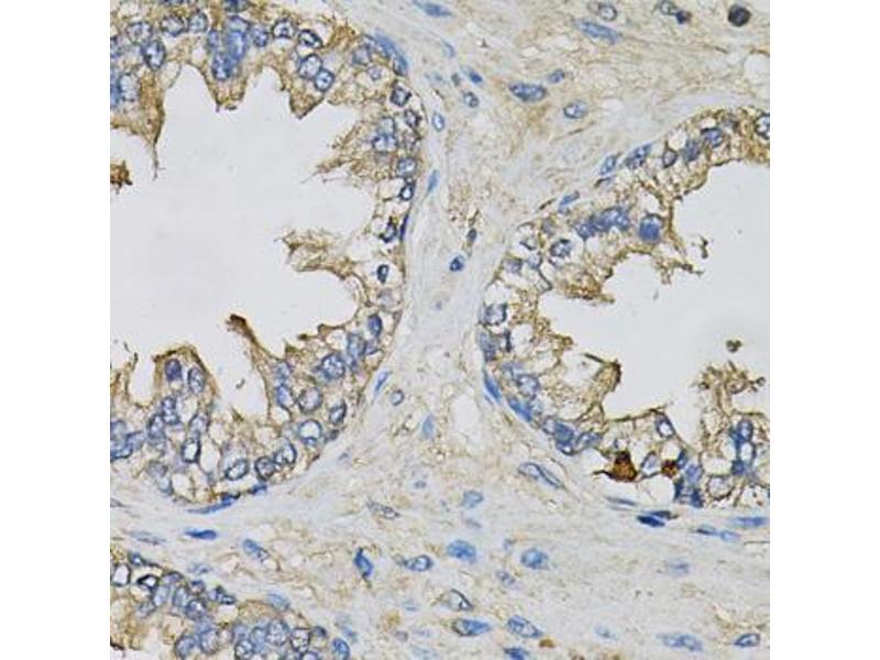 Image no. 1 for anti-Eukaryotic Translation Initiation Factor 3 Subunit H (EIF3H) antibody (ABIN6567922)