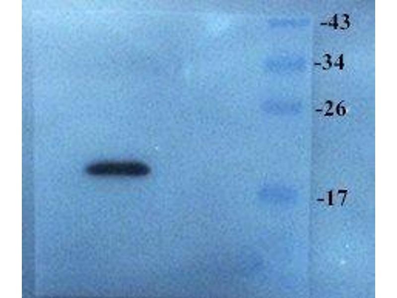 Western Blotting (WB) image for anti-Stathmin 1 (STMN1) antibody (ABIN2506727)