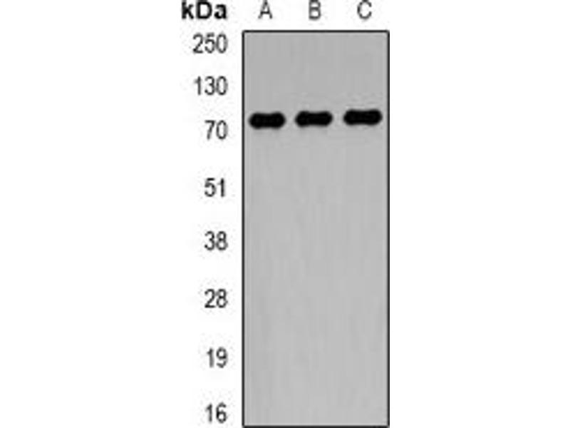 Western Blotting (WB) image for anti-TCF4 antibody (Transcription Factor 4) (ABIN2967083)