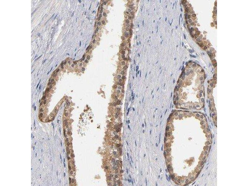 Immunohistochemistry (Paraffin-embedded Sections) (IHC (p)) image for anti-Macrophage Migration Inhibitory Factor (Glycosylation-Inhibiting Factor) (MIF) antibody (ABIN4334481)