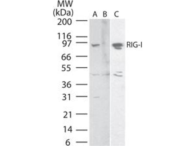 image for anti-DEAD (Asp-Glu-Ala-Asp) Box Polypeptide 58 (DDX58) (AA 1-50) antibody (ABIN959981)