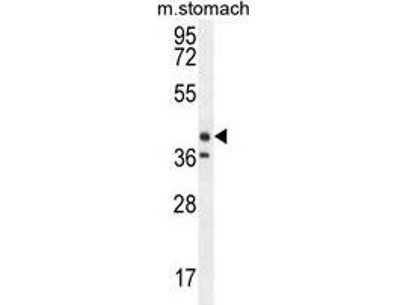 Western Blotting (WB) image for anti-Tectorin beta (TECTB) (AA 61-91), (N-Term) antibody (ABIN955139)