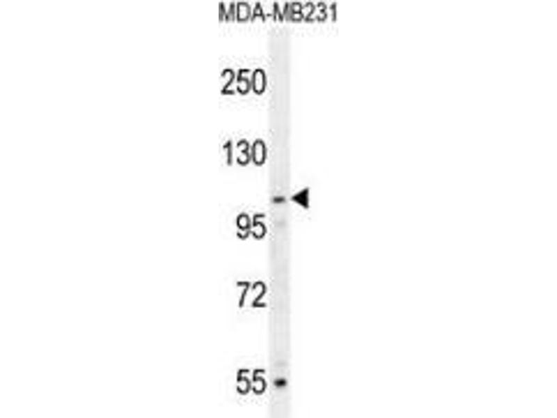 Western Blotting (WB) image for anti-MYSM1 antibody (Myb-Like, SWIRM and MPN Domains 1) (N-Term) (ABIN953592)