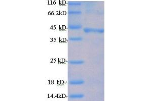 Image no. 1 for Follicle Stimulating Hormone Receptor (FSHR) (AA 18-366), (Extracellular) protein (His tag) (ABIN5709537)
