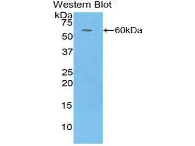 Western Blotting (WB) image for anti-Complement Factor D (CFD) (AA 1-253) antibody (ABIN1858379)