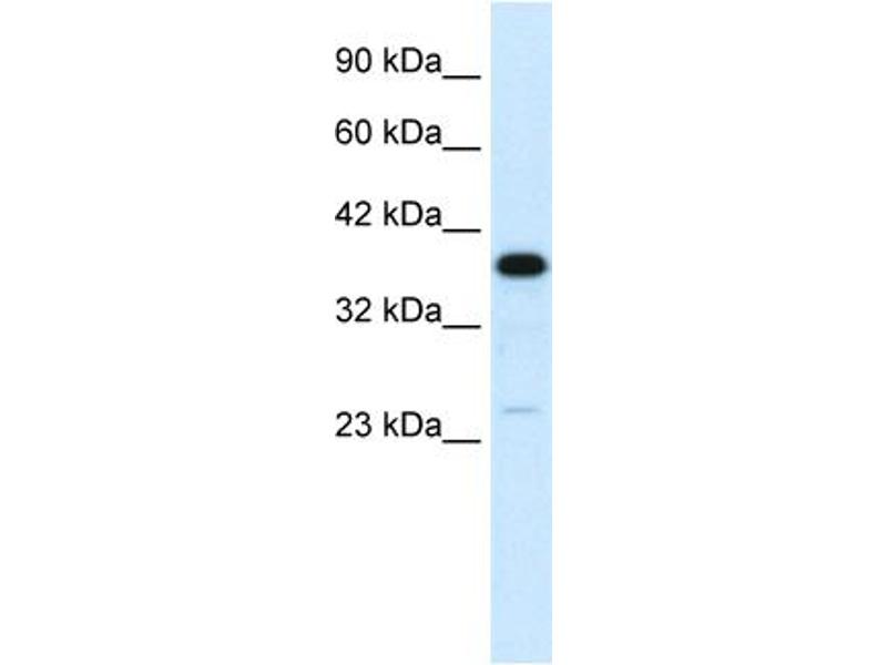Western Blotting (WB) image for anti-C4BPB antibody (Complement Component 4 Binding Protein, beta) (N-Term) (ABIN2778139)